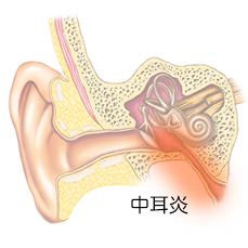 ない 治ら 外耳 炎